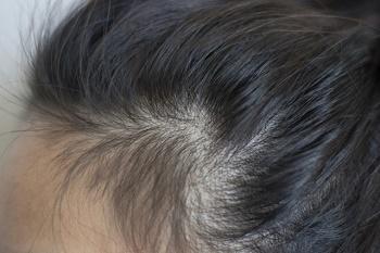 白髪が生えてくる髪の生え際