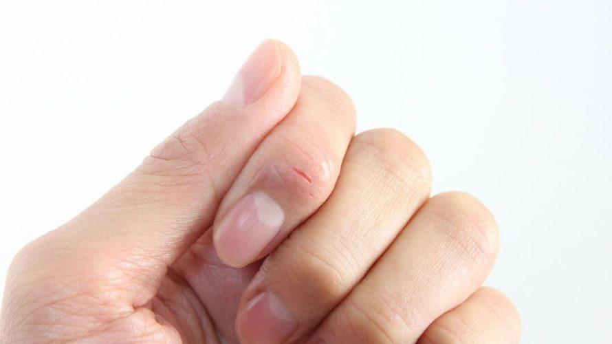 コーセー「コエンリッチプレシャス薬用ホワイトニングハンドケアクリーム」はひび割れた指先に効いた!
