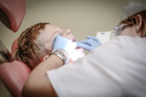 歯科治療イメージ